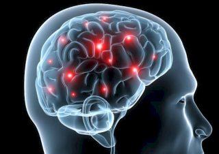 encefalomielit-1