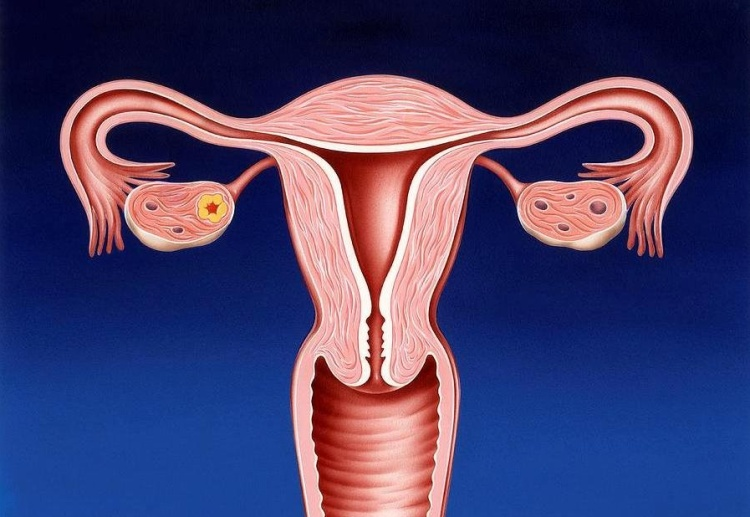 endocervicit-1