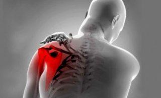 Тендинит задней большеберцовой мышцы